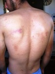 bruises_on_back_2